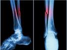 Frattura ossea recente? Ritardo di consolidazione ossea? Pseudoartrosi? La MAGNETOTERAPIA può aiutarti!